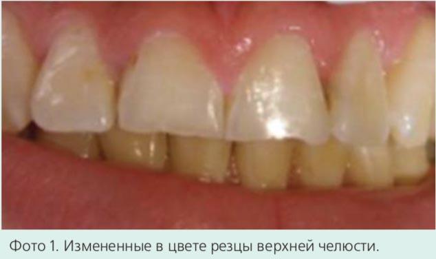 Фото 1. Измененные в цвете резцы верхней челюсти.