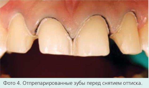 Фото 4. Отпрепарированные зубы перед снятием оттиска.