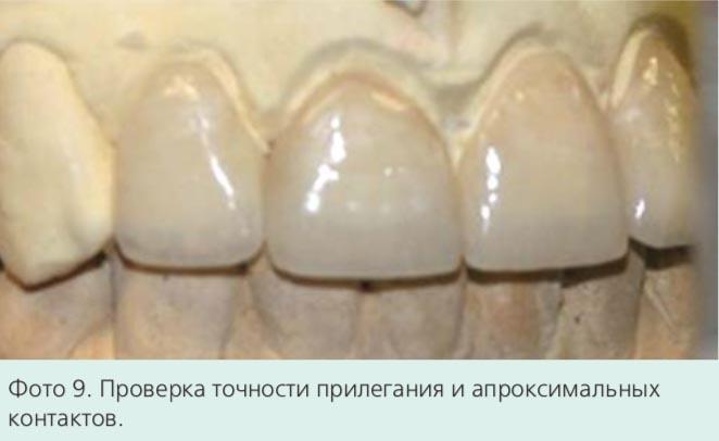 Фото 9. Проверка точности прилегания и апроксимальных контактов.