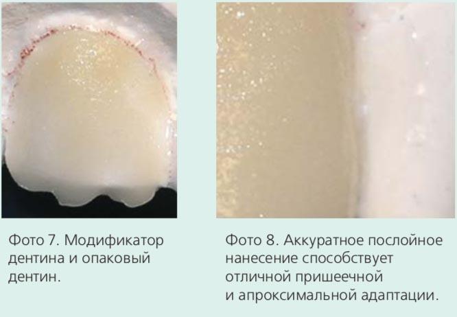 Фото 7. Модификатор дентина и опаковый дентин. Фото 8. Аккуратное послойное нанесение способствует отличной пришеечной и апроксимальной адаптации.