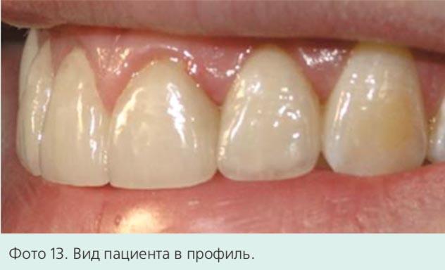 Фото 13. Вид пациента в профиль.
