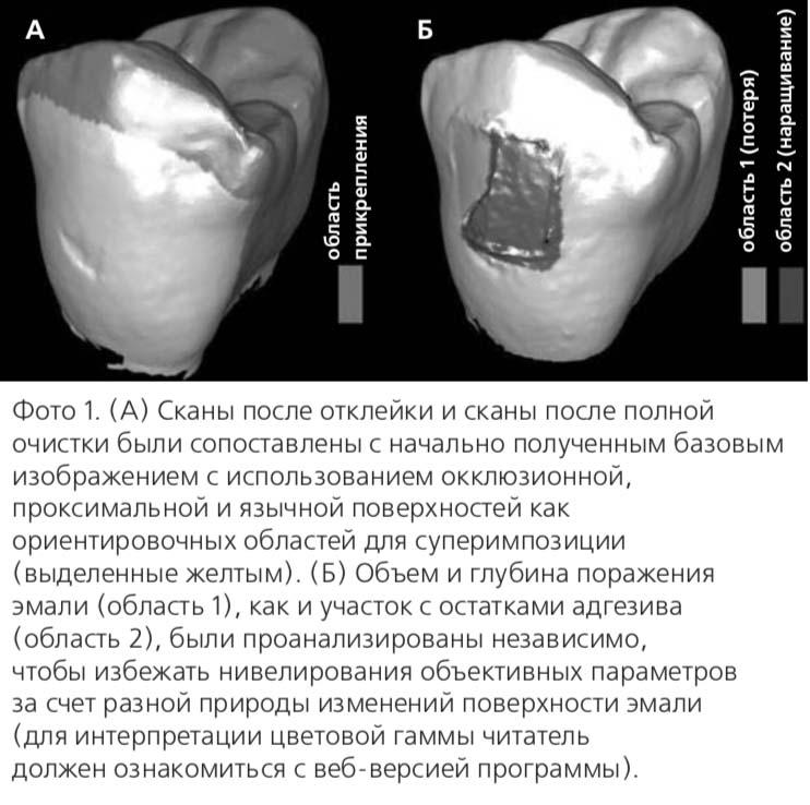 Фото 1. (А) Сканы после отклейки и сканы после полной очистки были сопоставлены с начально полученным базовым изображением с использованием окклюзионной, проксимальной и язычной поверхностей как ориентировочных областей для суперимпозиции