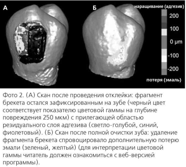 Фото 2. (А) Скан после проведения отклейки: фрагмент брекета остался зафиксированным на зубе (черный цвет соответствует показателю цветовой гаммы на глубине повреждения 250 мкм) с прилегающей областью резидуального слоя адгезива