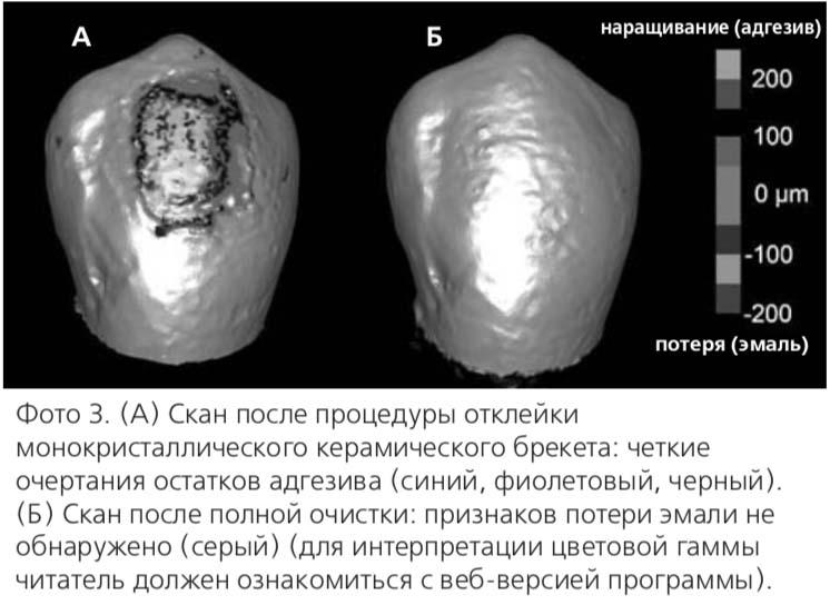 Фото 3. (А) Скан после процедуры отклейки монокристаллического керамического брекета: четкие очертания остатков адгезива