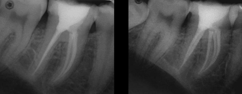 Эндодонтическое лечение первого моляра нижней челюсти с вариативной морфологией