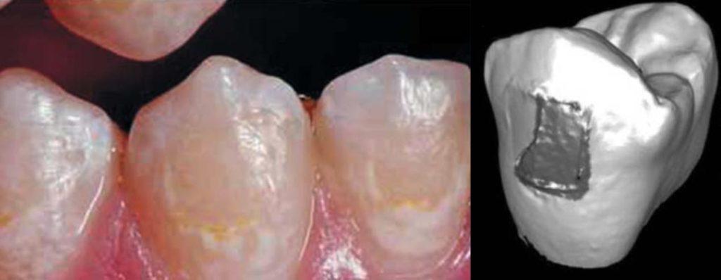 Потеря эмали после снятия керамических брекетов