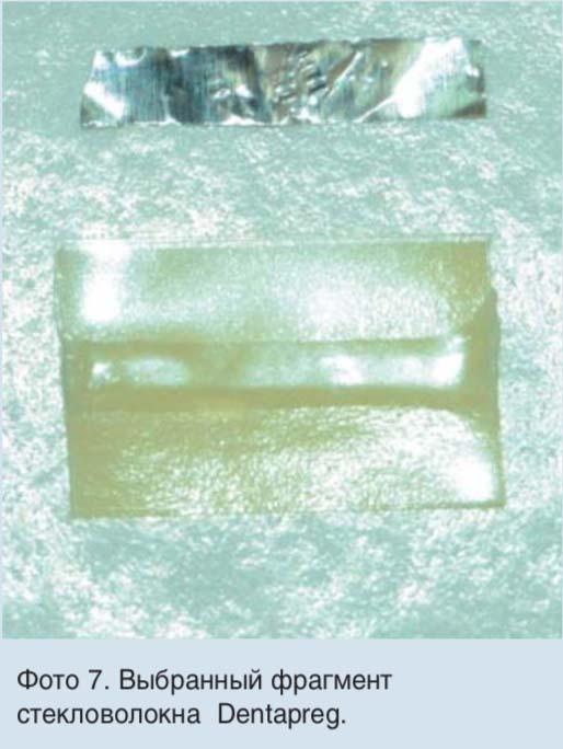 Фото 7. Выбранный фрагмент стекловолокна Dentapreg.