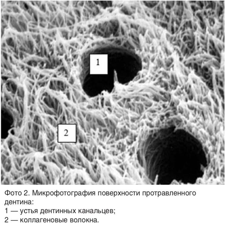 Фото 2. Микрофотография поверхности протравленного дентина