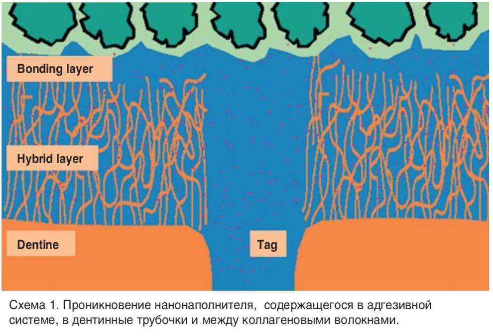 Проникновение нанонаполнителя, содержащегося в адгезивной системе, в дентинные трубочки и между коллагеновыми волокнами.