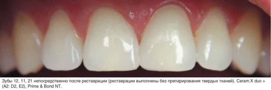 Зубы 12, 11, 21 непосредственно после реставрации (реставрации выполнены без препарирования твердых тканей). Ceram.X duo + (А2: D2, E2), Prime & Bond NT.