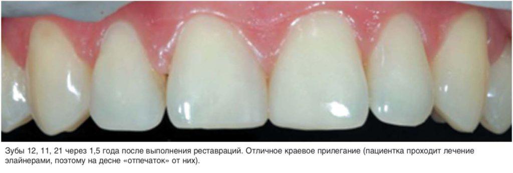 Зубы 12, 11, 21 через 1,5 года после выполнения реставраций. Отличное краевое прилегание (пациентка проходит лечение элайнерами, поэтому на десне «отпечаток» от них).