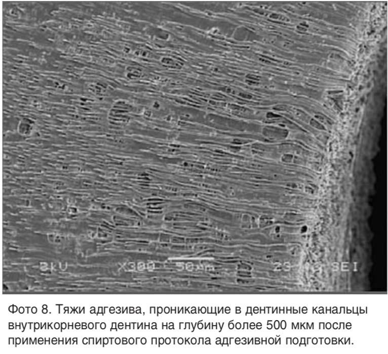 Фото 8. Тяжи адгезива, проникающие в дентинные канальцы внутрикорневого дентина на глубину более 500 мкм после применения спиртового протокола адгезивной подготовки.