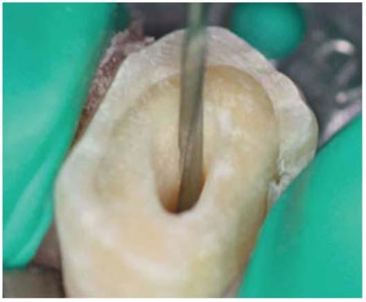 Удаление корневого пломбировочного материала с помощью Largo Peeso Reamer.