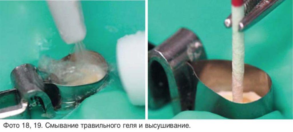 Фото 18, 19. Смывание травильного геля и высушивание.