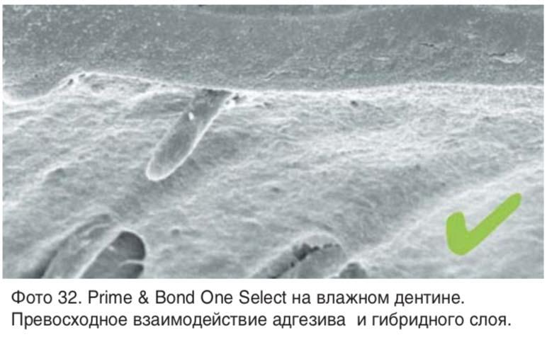 Фото 32. Рrime & Bond Оne Sеlect на влажном дентине. Превосходное взаимодействие адгезива и гибридного слоя.