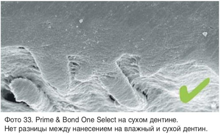 Фото 33. Рrime & Bond Оne Sеlect на сухом дентине. Нет разницы между нанесением на влажный и сухой дентин.