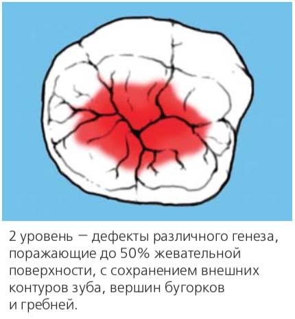 2 уровень — дефекты различного генеза, поражающие до 50% жевательной поверхности