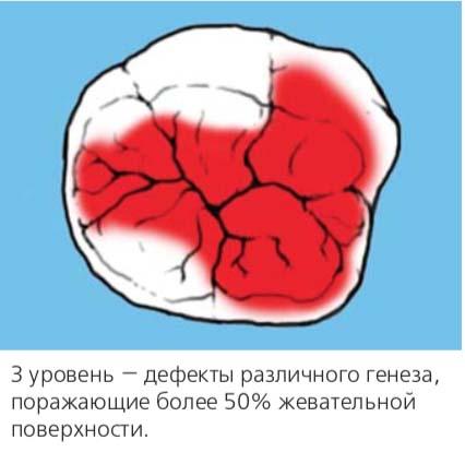 3 уровень — дефекты различного генеза, поражающие более 50% жевательной поверхности.