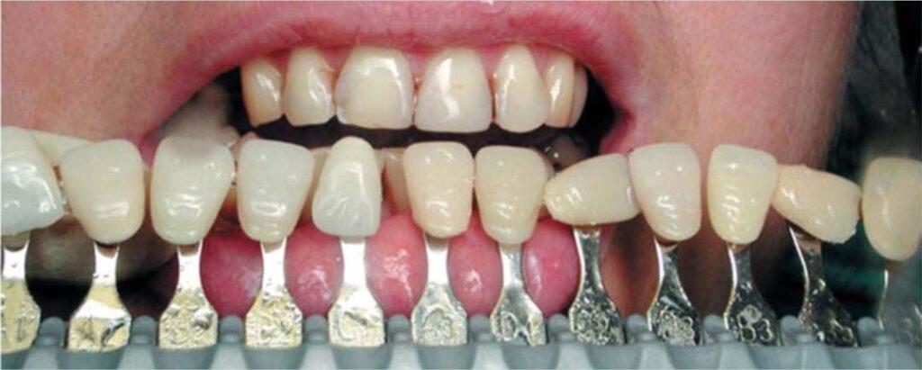 Определен цвет зубов по шкале Вита. Цвет зубов соответствует оттенку А3.