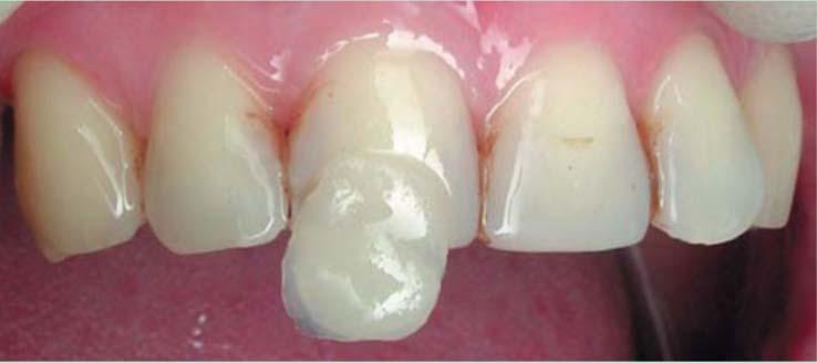 Фото 3. Оттенки А3В и А3Е нанесены на зуб, полимеризованы; видно сходство выбранных оттенков с тканями зуба.