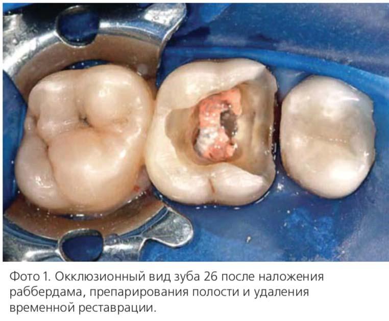 Окклюзионный вид зуба 26 после наложения раббердама, препарирования полости и удаления временной реставрации.
