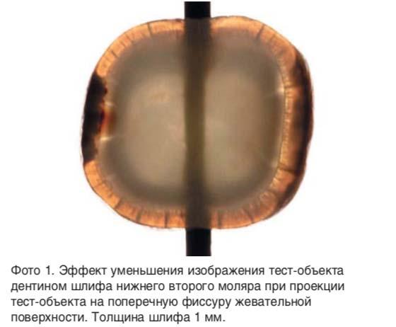 Эффект уменьшения изображения тест-объекта дентином шлифа нижнего второго моляра при проекции тест-объекта на поперечную фиссуру жевательной поверхности.