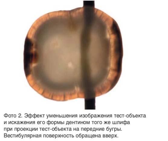 Эффект уменьшения изображения тест-объекта и искажения его формы дентином того же шлифа при проекции тест-объекта на передние бугры.