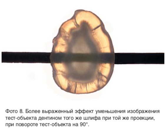 Более выраженный эффект уменьшения изображения тест-объекта дентином того же шлифа при той же проекции, при повороте тест-объекта на 90°.