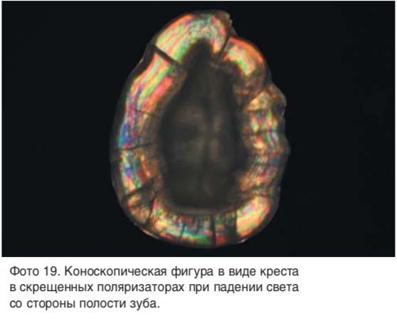 Коноскопическая фигура в виде креста в скрещенных поляризаторах при падении света со стороны полости зуба.
